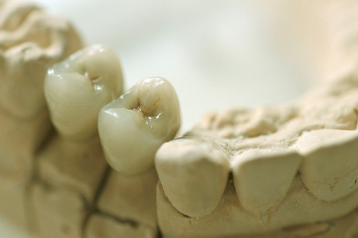 Stock Photo: 824-75666 DENTAL PROSTHESIS. DENTAL PROSTHESIS Photo essay from hospital. University regional medical center at Lille, in the  Nord-Pas-de-Calais region of France. Odontology, ceramic crowns.