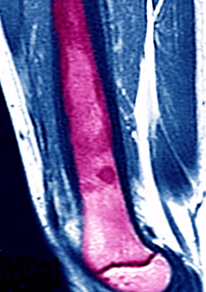 Stock Photo: 824-76694 OSTEOSARCOMA, MRI. This sagittal MRI image of the thighbone reveals an ostéosarcoma.