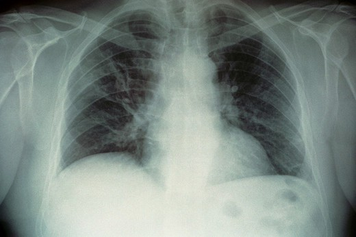 LEGIONNAIRE´S DISEASE. LEGIONNAIRE´S DISEASE After 10 days of treatment, patient has recuperated the majority of respiratory capacity. Image 2 of 2. : Stock Photo