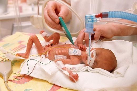 Stock Photo: 824-78096 PREMATURE BABY. PREMATURE BABY Photo essay from hospital. Arras Hospital, in the French region of Nord-Pas-de-Calais. Maternity ward. Resuscitation. Neonatology. Pediatric nurse taking premature infant´s temperature.