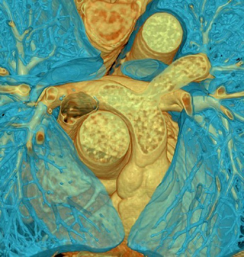 Stock Photo: 824-79441 HEART, 3D SCAN. HEART, 3D SCAN 3D CT scan of heart and lungs. Pulmonary artery.