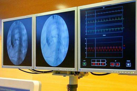 HEART VALVE PROTH. IMPLANTATION. Photo essay from hospital. : Stock Photo
