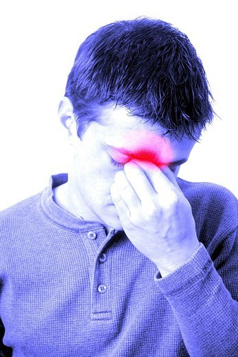 SINUSITIS IN A MAN. Model. : Stock Photo