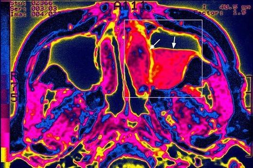 SINUSITIS, SCAN. SINUSITIS, SCAN Sinusitis in the left maxillary sinus. Cranial MRI, axial view. : Stock Photo