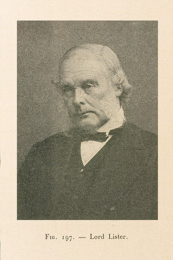 FAMOUS PEOPLE IN MEDICAL HISTORY. FAMOUS PEOPLE IN MEDICAL HISTORY Joseph Lister, Baron of Lyme Regis (1827-1912), British surgeon. : Stock Photo
