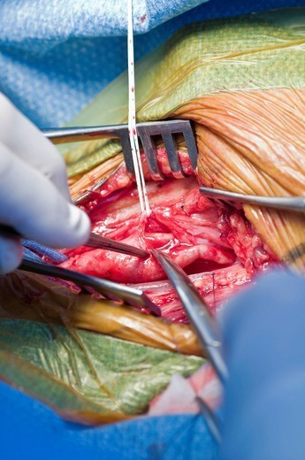 CAROTID, SURGERY. Photo essay from hospital. Photo essay at Alleray_Labrouste clinic, Paris, France. Department of vascular surgery. Operating room. Carotid endarterectomy is the ablation of an atherosclerosis at the level of the carotid bifurcation. The athero : Stock Photo