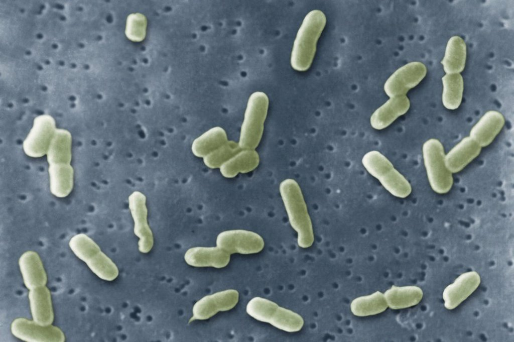 SHIGELLA SONNEI : Stock Photo
