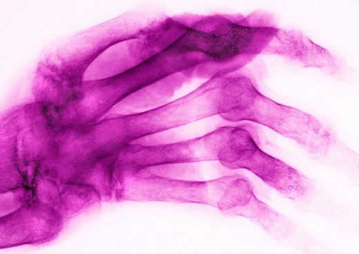 Stock Photo: 824-91483 RHEUMATOID ARTHRITIS, X-RAY. RHEUMATOID ARTHRITIS, X-RAY Rhumatoid arthritis. Here, the disease has caused ankylosis and bone deformation of the right hand. This condition affects mainly women and is responsible for cartilage, bone and ligament destruction. Its cause is unknown.   X-ray of right hand.