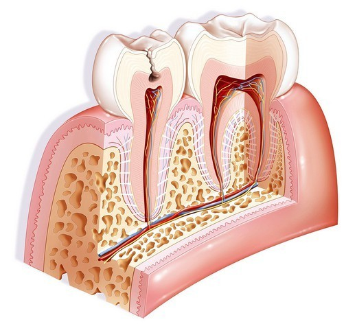 DENTAL CARIE, DRAWING. Representation on the tooth on the left of a tooth decay of second stage affection of the dentin or ivory. The dentin is represented in pinkish beige. : Stock Photo