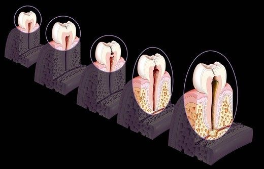 DENTAL CARIE, DRAWING. Formation and development of a tooth decay. From left to right : _ healthy tooth _ tooth decay that attacks the enamel stage 1. _ tooth decay that affects the dentin stage 2. _ tooth decay that affects the dental pulp stage 3. _ tooth decay : Stock Photo