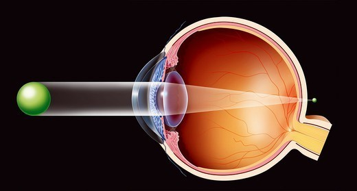 LONGSIGHTEDNESS, DRAWING. LONGSIGHTEDNESS, DRAWING Presbyopic eye.   Illustration of a presbyopic eye (lens which, with age, has lost its ability to focus) in which the image´s focal point is located behind the retina, causing blurred near vision. : Stock Photo