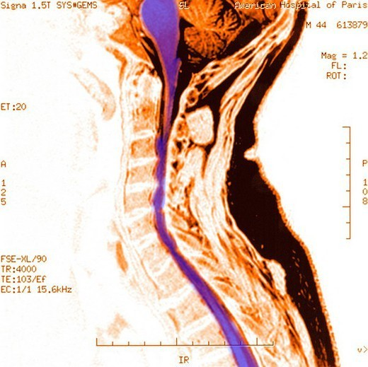 Stock Photo: 824-96668 CERVICAL ARTHROSIS, MRI. CERVICAL ARTHROSIS, MRI Osteoarthritis at the level of the cervical vertebrae in a 44_year_old man MRI. Compression of the cervical spinal column by displacement of the intervertebral disks.