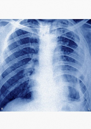 Stock Photo: 824-97413 PYOTHORAX, X_RAY. PYOTHORAX X RAY Chronic purulent pleurisy. Thoracic x_ray in front view. Purulent pleurisy, or pleural empyema, corresponds to the presence of pus in the pleural cavity, caused by an infection. So, it is a form of pleural effusion.